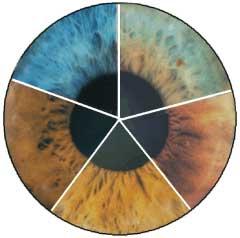 iridology2